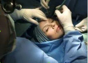 Mulher procedimento cirúrgico facial